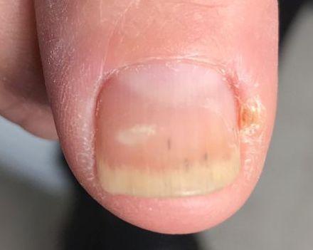 grzybica na paznokciu