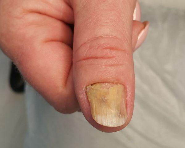 grzybica paznokia dłoni